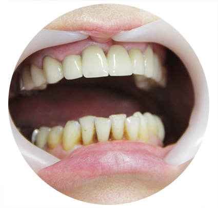 лазерное отбеливание зубов фото до и после