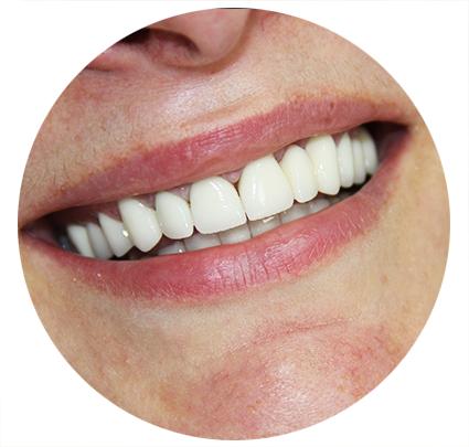 виниры на зубы акция москва