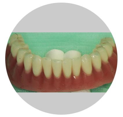 виниры на зубы цена в саратове отзывы