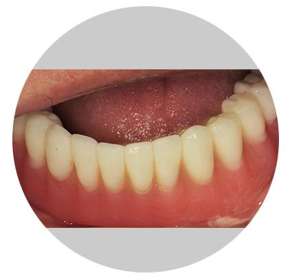 Имплантация зубов и протеза