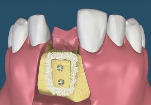 Костная пластика стоматология
