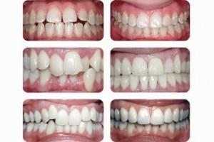Установить брекеты на зубы