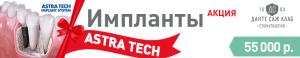 Акция Имплантация Astra Tech 55 000р