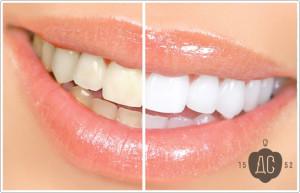 Лазерное отбеливание зубов зум (zoom) стоматология Москва