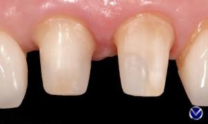 подготовка зубов под коронки