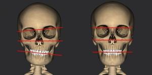 Ортокраниодонтия, Сакроокцепитальные техники, исправление лицевых искажений, исправление родовых травм